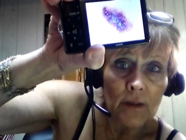 Nancy Gurish holding a camera with an image of a tumor growth