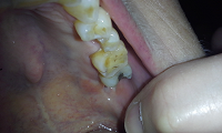 cracked tooth healing upper tooth